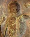 skeleton9